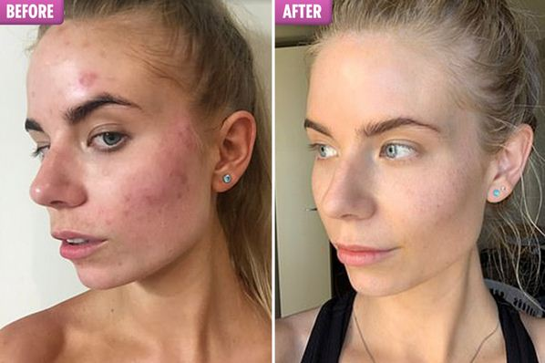 get rid of cystic acne easily.